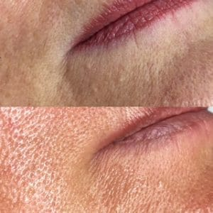 Before and after one meso therapy treatment southampton LA Beauty