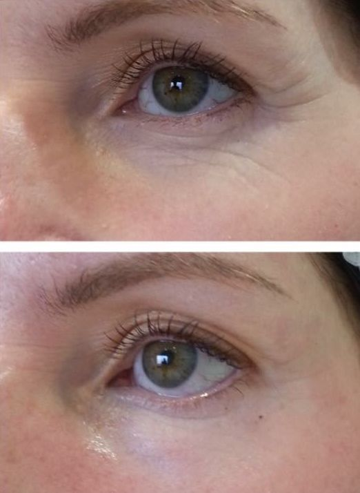 Before and after three meso therapy treatments southampton LA Beauty