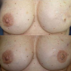 Medical Tattoo Breast Surgery Southampton