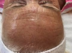 Meso Therapy Treatment Southampton LA Beauty After