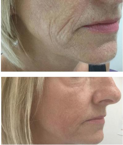 semi permanent makeup Southampton